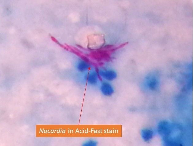 Nocardia in Acid fast stain