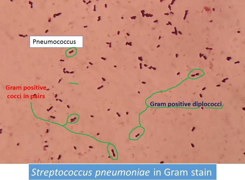 Pneumococcus in gram stain showing gram positive diplococci
