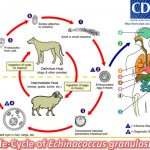 Echinococcus