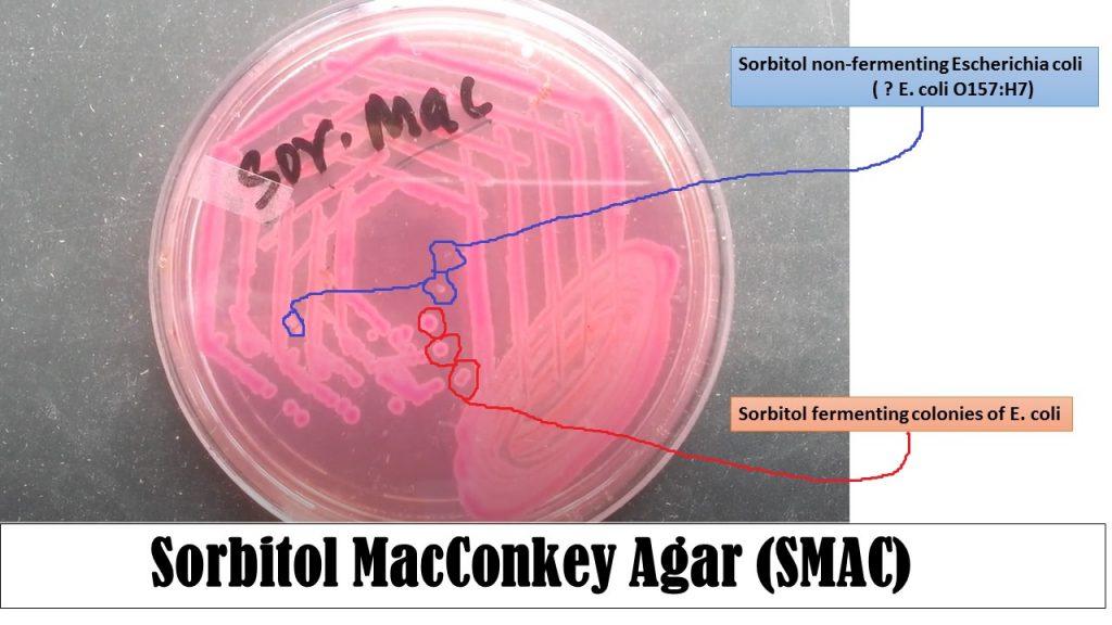 what pathogen causes e coli
