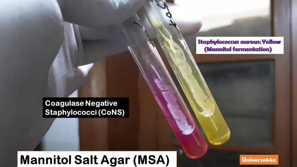 Mannitol Salt Agar (MSA): Introduction, Composition, Preparation, Uses , Colony Characteristics and Keynotes